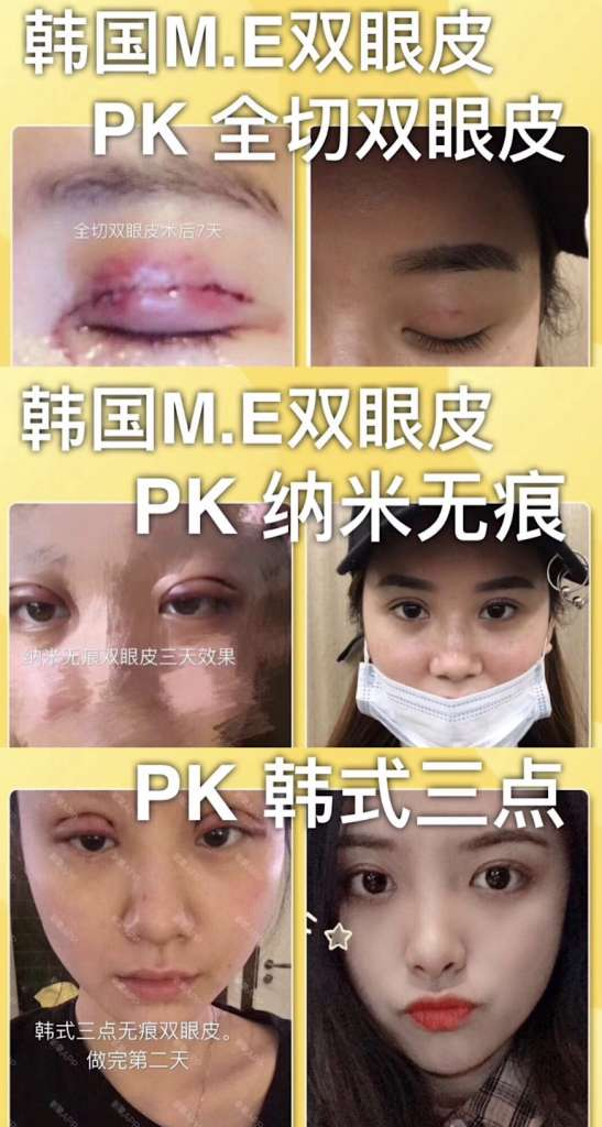 韩国ME双眼皮技术原理是什么,有什么危害吗